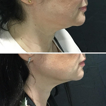Before and after double chin treatment