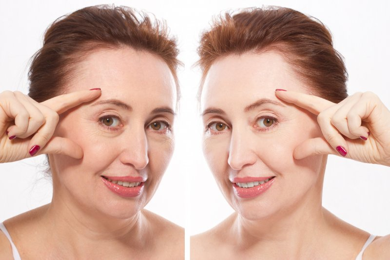 The before and after images of an older woman who recently received dermal fillers